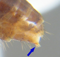 Detail of Formicinae worker gaster